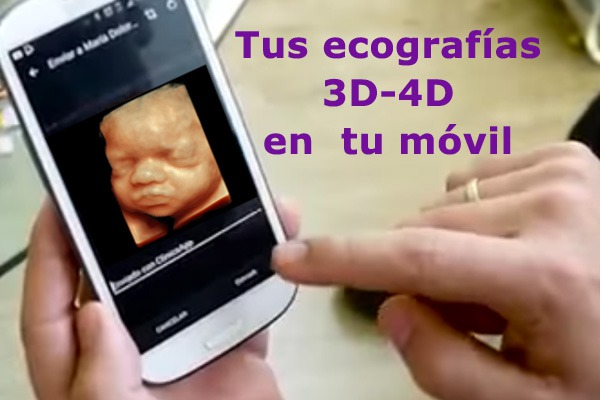 ecografias-en-movil-600-x-400-para-web