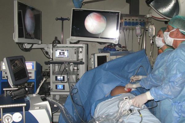 fetoscopia-gutenberg-2-600×400