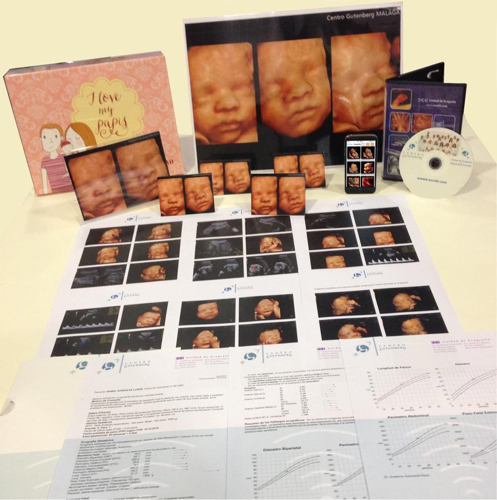 Ecografia 3D 4D Material entregado - Ecografia 4D y Medicina Fetal ...