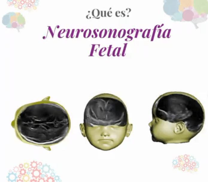 neurosonografía